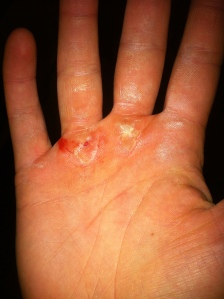 Those two calluses in the middle ? Hanging off.